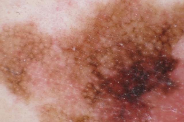 An Overview of Skin Cancer