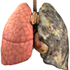 Chronic Obstructive Pulmonary Disease for Pharmacists