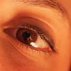 Treatment of Eyelash Hypotrichosis