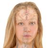Aesthetics: Facial Anatomy