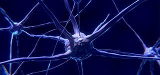 Neurology SCE (Free Trial)